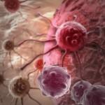 סרטן - ריפוי בעזרת הומאופתיה