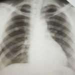 סרטן ריאות - טיפול בעזרת הומאופתיה